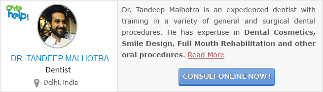 Online Dental Consultation - Dr. Tandeep Malhotra, Oyehelp.com