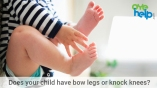/blog/does-your-child-have-bow-legs-or-knock-knees